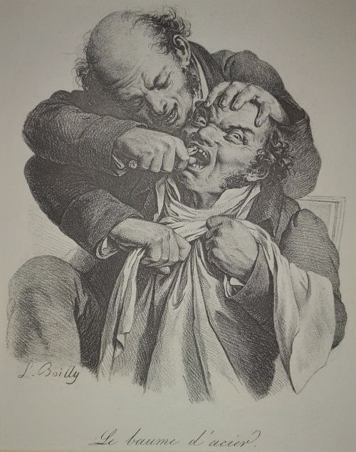 Louis Boilly tooth extraction lithograph